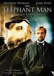 elefantmanden / the elephant man - DVD