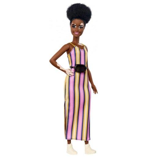 Image of   Barbie Fashionistas Dukke - Med Vitiligo Og Stribet Kjole
